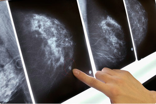 types of breast tumors